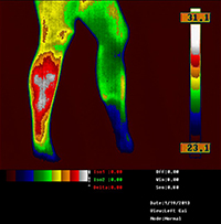 body thermography image of Vascular warming over legs consistent with appearance of varicose vein